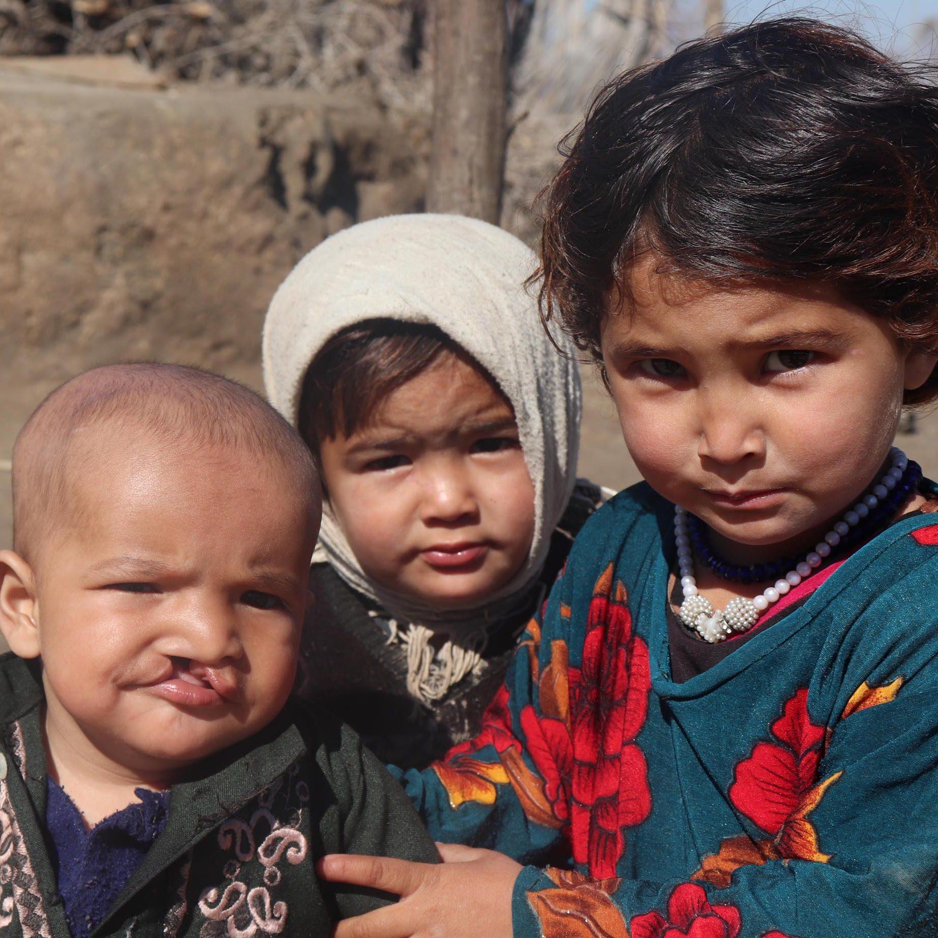 Patient mit Geschwistern in Afghanistan © Deutsche Cleft Kinderhilfe e.V.
