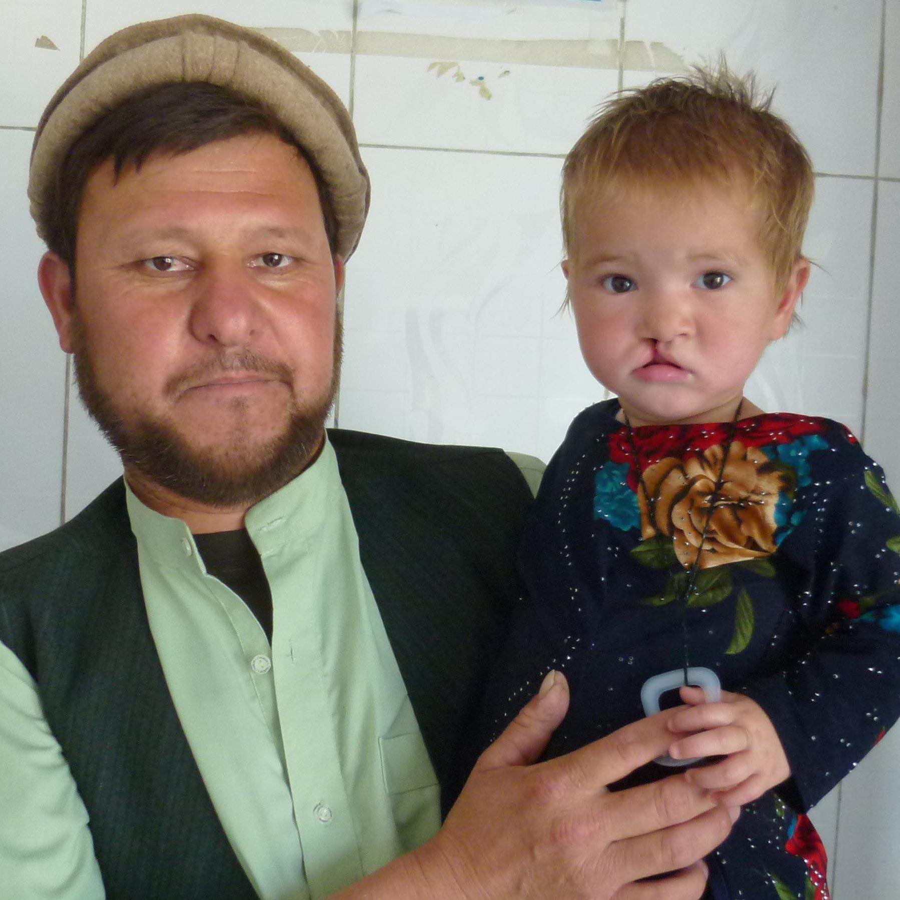 Kunduz kleine Patientin mit Vater © Deutsche Cleft Kinderhilfe e.V.