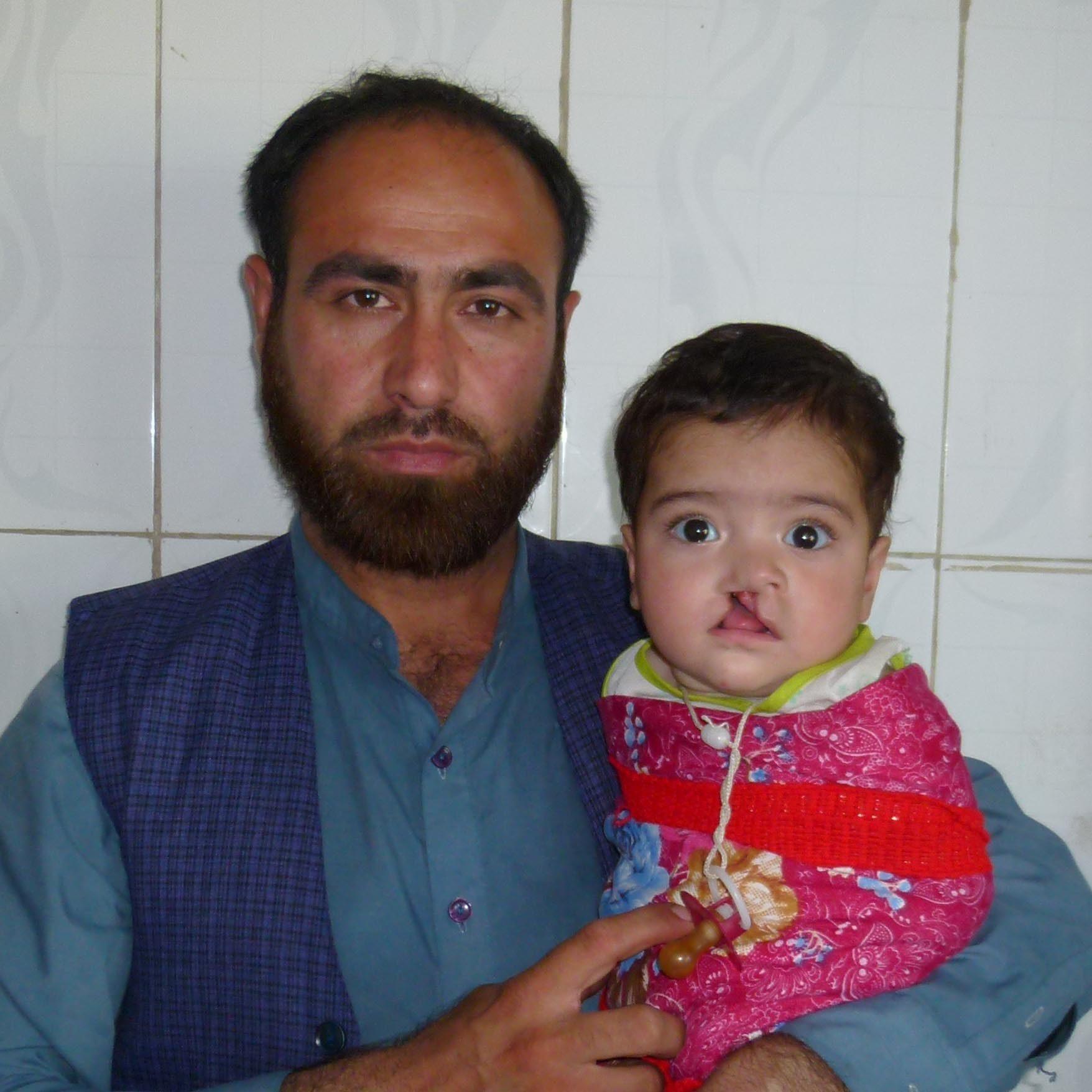 Kleine Patientin mit Vater in Kunduz © Deutsche Cleft Kinderhilfe e.V.