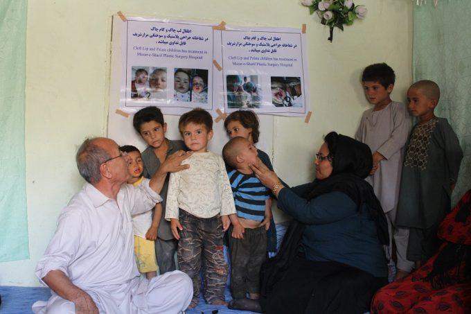 Voruntersuchungen bei einem Aufklärungscamp © Deutsche Cleft Kinderhilfe e.V.